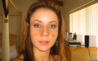 Где и как лучше всего делать коррекцию овала лица